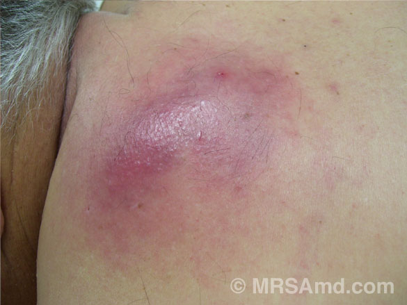 Staph infections - Symptoms and causes - Mayo Clinic