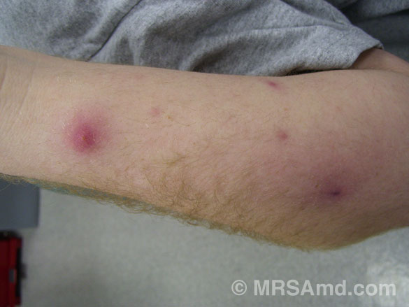Can Dogs Have Mrsa